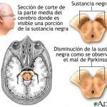 Grandes avances en la lucha contra el Parkinson