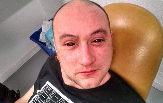 asi-te-quedan-los-ojos-despues-de-echarte-clorine